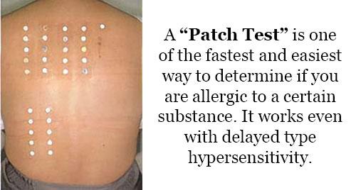 Skin Patch Test cara untuk tahu tahap alahan