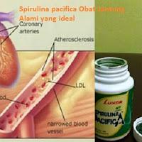 Spirulina adalah obat jantung koroner
