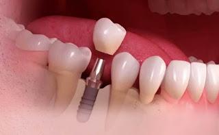 تكلفة زراعة الاسنان في مستشفى الحبيب