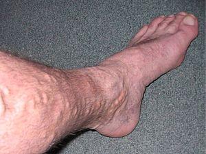 varicose veins & spider veins