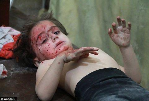 Το θέαμα είναι φρικιαστικό: Ο βομβαρδιμός στο Χαλέπι έχει οδηγήσει αθώα παιδιά στον θάνατο και στην εξαθλίωση (photos)