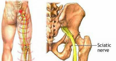 Experts Say That This Simple Ingredient Is Effective For Sciatica Pain