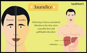 Obat Tradisional Penyakit Kuning