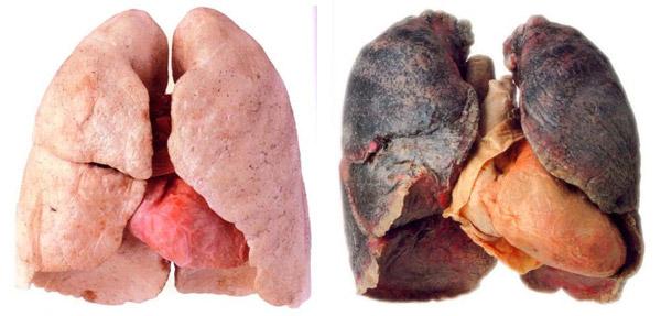 Foto real de pulmones sanos y pulmones enfermos con cancer (por fumar)
