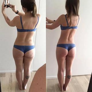 Таблетки для похудения до и после