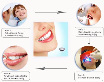 Quy trình gắn kim cương lên răng