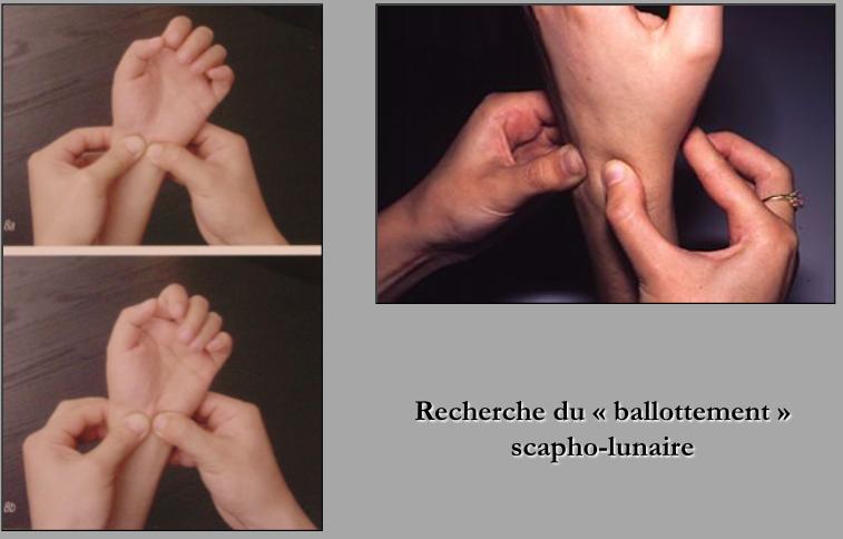 Un médecin du sport vous informe: Traumatologie du poignet ...