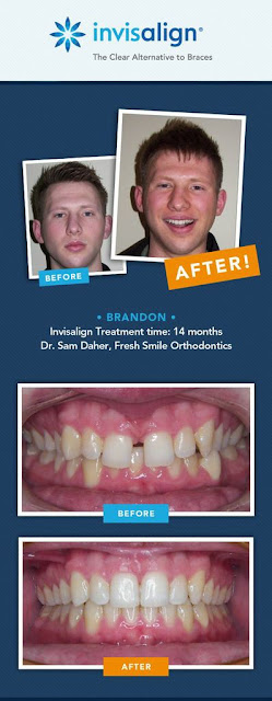 Invisalign Before and After Boy #ad #INVStraightTalk