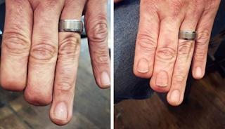 Πώς με τη δύναμη του τατουάζ ένας άνθρωπος απέκτησε και πάλι τα δάχτυλά του