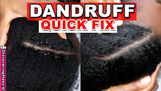 Dandruff Flakes Removal and Dandruff Treatment | DiscoveringNatural