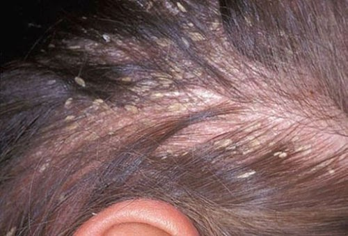 Hair Loss Seborrheic Dermatitis