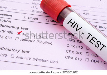 hiv oralsex aktiv