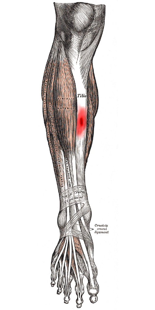 running writings injury series tibial stress fractures and stress Anterior Tibia Fracture this installment of the injury series deals with tibial stress fractures, one of the most serious of the common running injuries