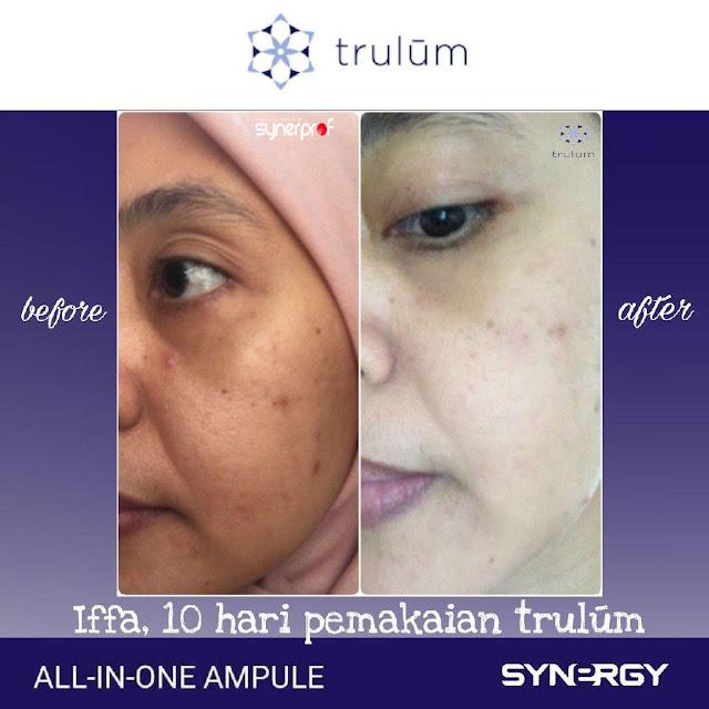 Jual Trulum Serum Anti Aging Di Gegesik Cirebon