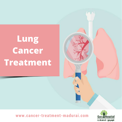 Fight Lung Cancer With Hormonal Therapy