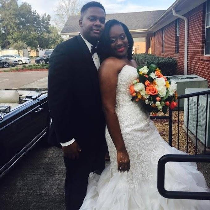 Bride who developed vitiligo before her wedding: 'I had to embrace it'