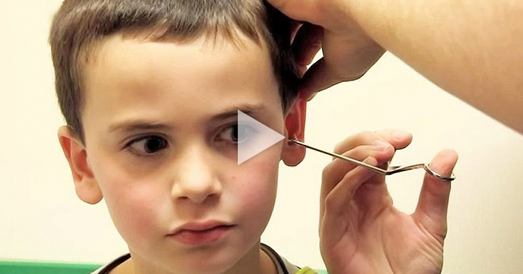 A little boy thought he has a pencil stuck in his ear but it was something else entirely