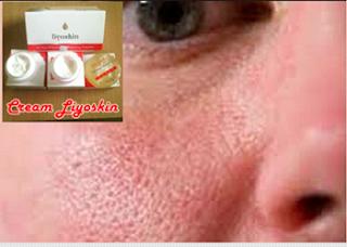 cream pemutih wajah untuk kulit pori-pori jeruk