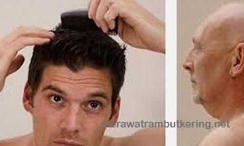Cara Cepat Memanjangkan Rambut Pria dalam 3 Hari Secara Alami