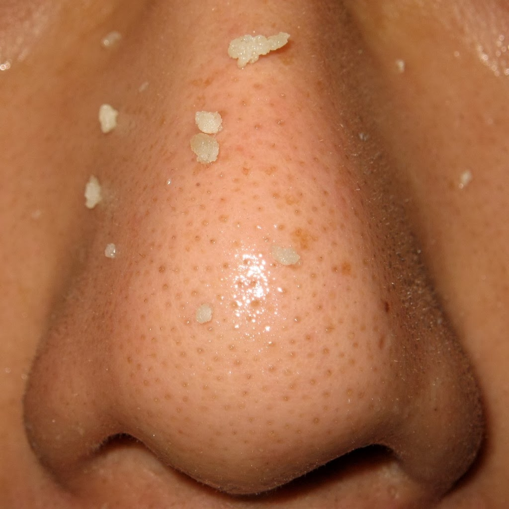 blackheads on nose -#main