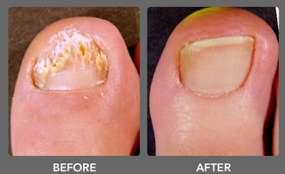 Treat Your Ingrown Toenail With These 6 Natural and Homemade Remedies