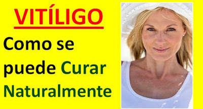 vitiligo-tratamiento-natural-nuevo-remedio-casero