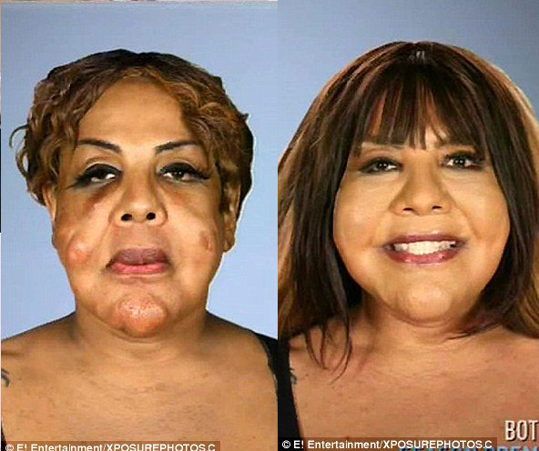 plastic surgery gone horribly wrong