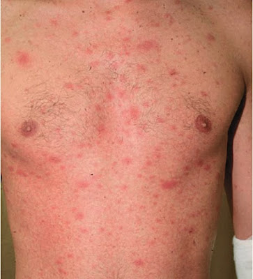 Generalized maculopapular rash in primary HIV infection