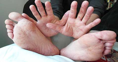 Hand Foot and Mouth Disease Causes