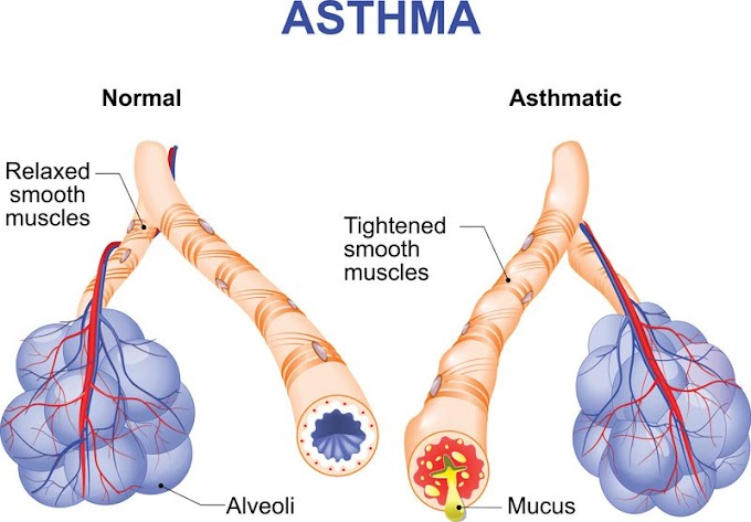 What is Asthma? How Do You Get Asthma? To what extent Does Asthma Last?