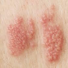 Herpes Genital Dan Cara pengobatan Yang Ampuh
