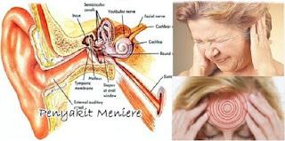 Penyakit atau gangguan pada telinga - berbagaireviews.com