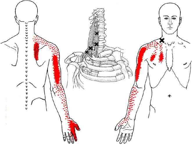 dor no ombro tem tratamento dor tem tratamento. Black Bedroom Furniture Sets. Home Design Ideas