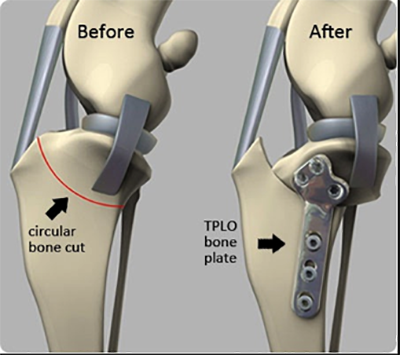 Tibial Plateau Leveling Osteotomy (TPLO)