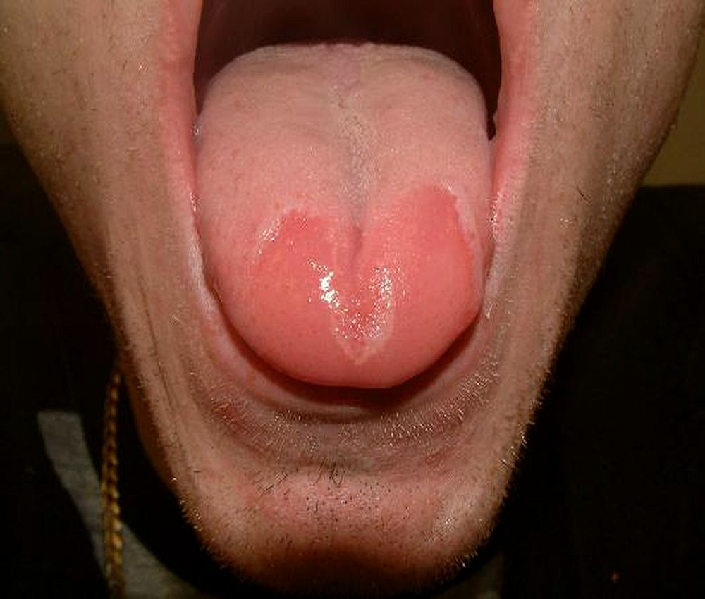Sore Red Tongue