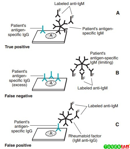 Causes of false-positive and false-negative immunoglobulin M (IgM) assays