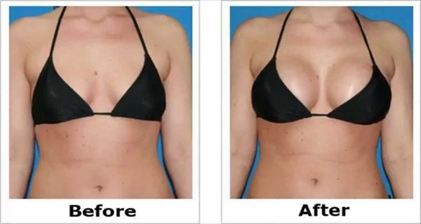 How to make perfect shape of breast