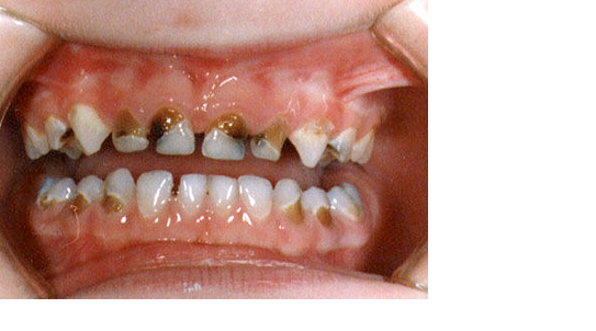 Common Dental Problem And Solution: Oral Health Problems ...