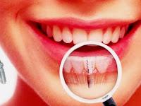 Ketahuilah Mengenai Implan Gigi Sebelum Melakukannya!