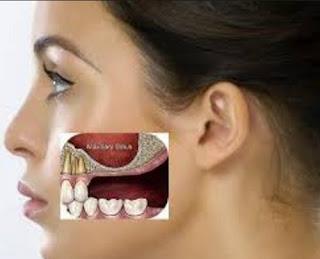 3 Faktor Penyebab Gigi Berlubang Dan Keropos