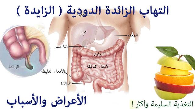 التهاب الزائدة الدودية ( الزايدة )  - الأعراض والأسباب - مقالة شاملة