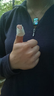 Skipper giving a thumbs-up with a bandaged thumb