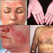Causes of lupus are not exactly known yet
