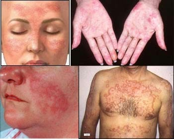 Lupus disease - definition, causes and symptoms