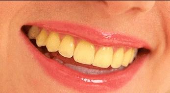 Penyebab Gigi Kuning Yang Wajib Anda Hindari Dan Ketahui