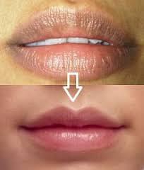 http://adasensasi.blogspot.com/2016/12/cara-merawat-bibir-tidak-menghitam.html