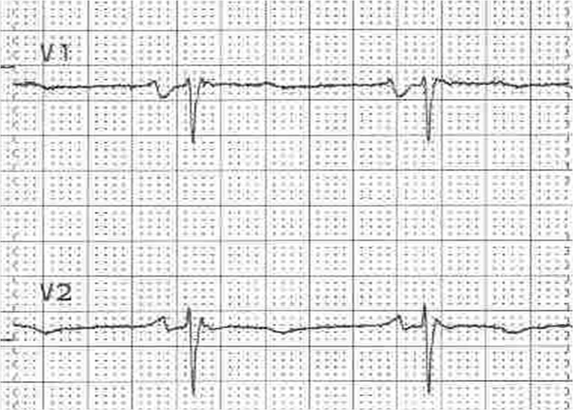 Dysrhythmias - Crashing Patient