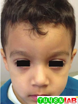 Allergic shiners in a child with acute bacterial sinusitis