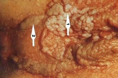 Kutil Kelamin Di Vagina