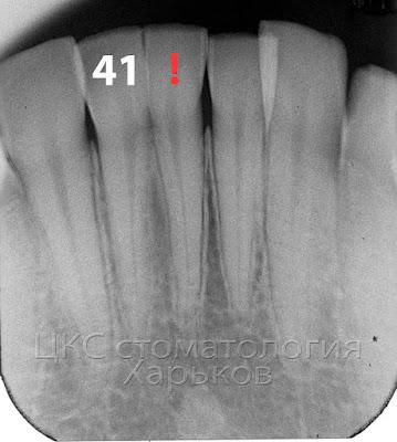 сверхкомплектный зуб связан с зубом 41 в области коронковой части